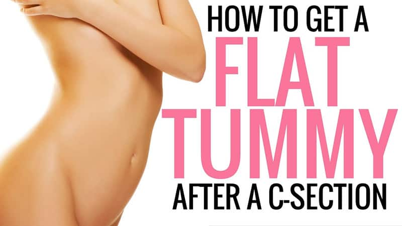 Life After A C Section Is Better With An Abdominal Binder Me And