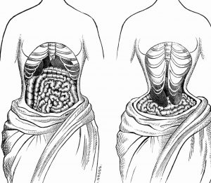 Effects of waist training, before and after.