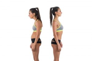 0ea05898998 Woman with impaired posture position defect scoliosis and ideal bearing.