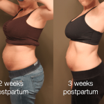 3 weeks postpartum