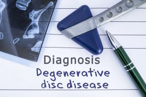 Diagnosis degenerative disc disease